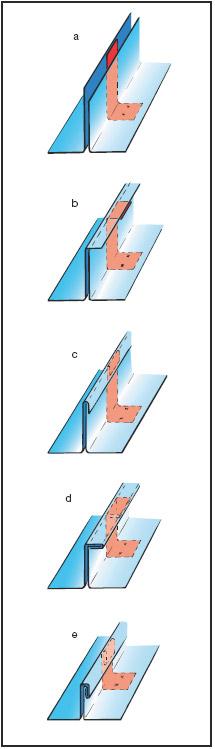 Figur 10:2. Tillverkningsmomenten av en dubbelfals där klammerns läge framgår. a) Hög- och lågfals bockas upp. b)+c) Högfalsen slås runt lågfalsen i två steg. d)+e) Enkelfalsen slås om i ytterligare två steg. Illustration: Hans Sandqvist, Bildinformation i Älvsö AB.